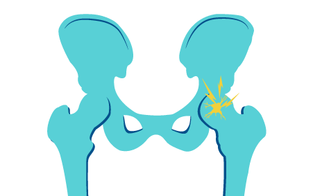 pelvic bones and hip illustration | Texas pain specialists